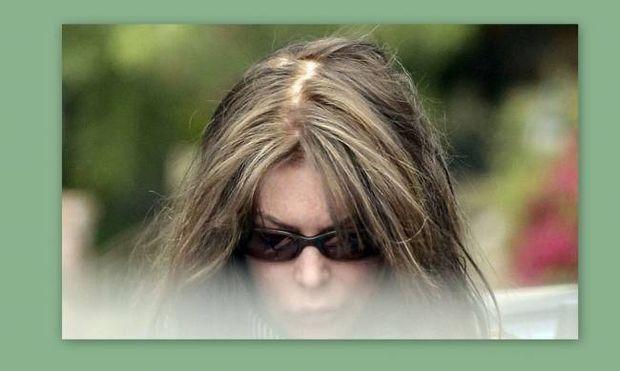 ΣΟΚ! Παραμορφώθηκε από τις πλαστικές και χάνει τα μαλλιά της!