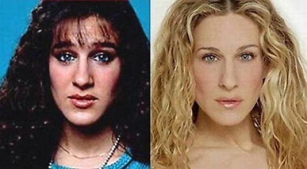 Απίστευτες μεταμορφώσεις: 11 διάσημοι πριν και μετά την πλαστική
