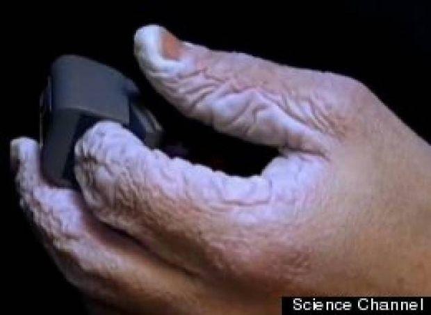 Βίντεο: Δείτε πως γίνεται το χέρι σας αν μείνετε 10 μέρες μέσα σε νερό