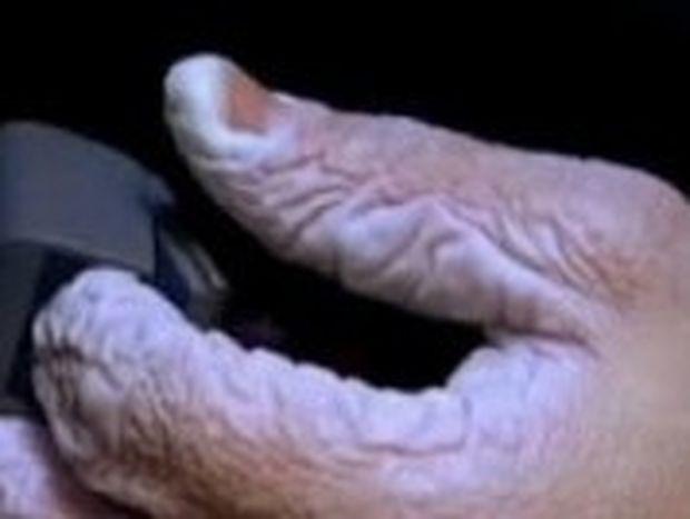 VIDEO: Δείτε πως γίνεται το χέρι σας αν μείνετε 10 μέρες μέσα σε νερό