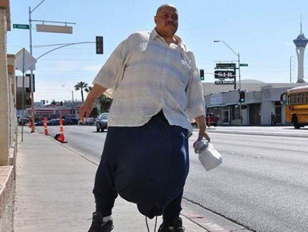 ΣΟΚ: Αφαίρεσε όρχι βάρους 45 κιλών!