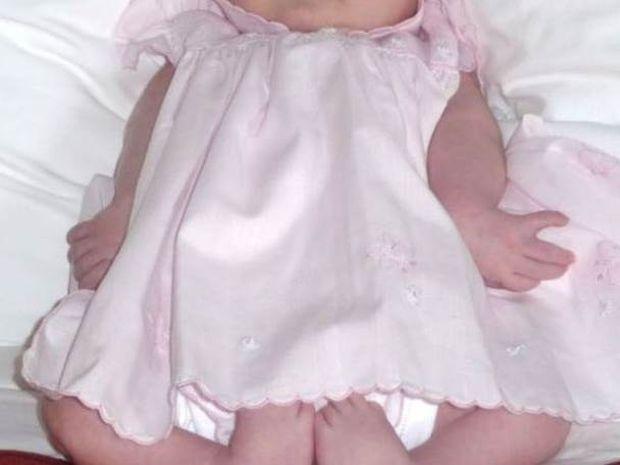 5χρονη που γεννήθηκε με πόδια βατράχου κάνει τα πρώτα της βήματα