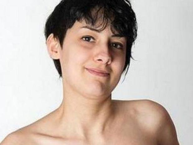 24χρονη κοιμάται επί 3 χρόνια με κορσέ ΔΕΙΤΕ πως έγινε
