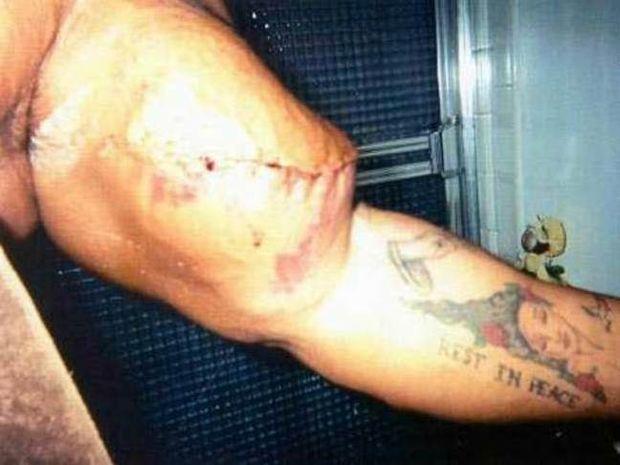 ΕΙΚΟΝΕΣ ΣΟΚ: Σκίστηκαν οι μύες του από τα αναβολικά!