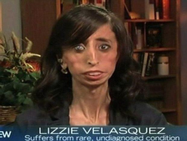 Η πιο «άσχημη γυναίκα στον κόσμο» μας λέει να είμαστε ο εαυτός μας