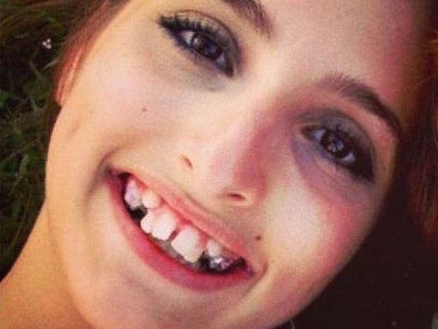Αυτή η κοπέλα απέκτησε το χαμόγελο που πάντα ονειρευόταν