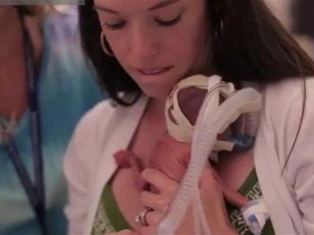 Το συγκλονιστικό video για την ανάπτυξη ενός πρόωρου μωρού