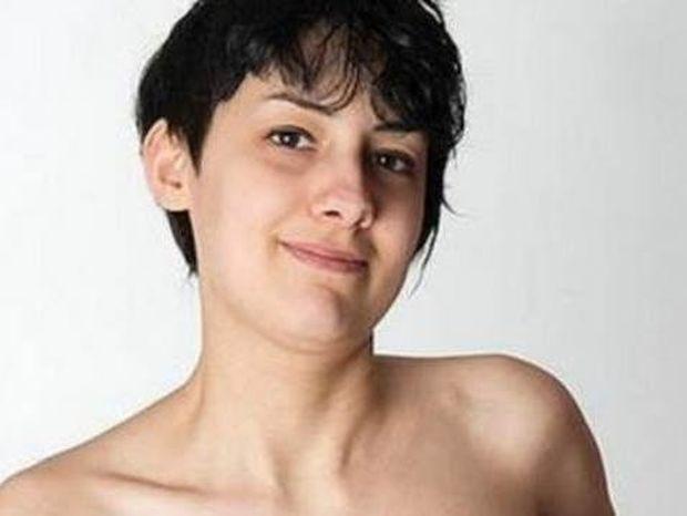 24χρονη κοιμάται επί 3 χρόνια με κορσέ ΔΕΙΤΕ πως έγινε...