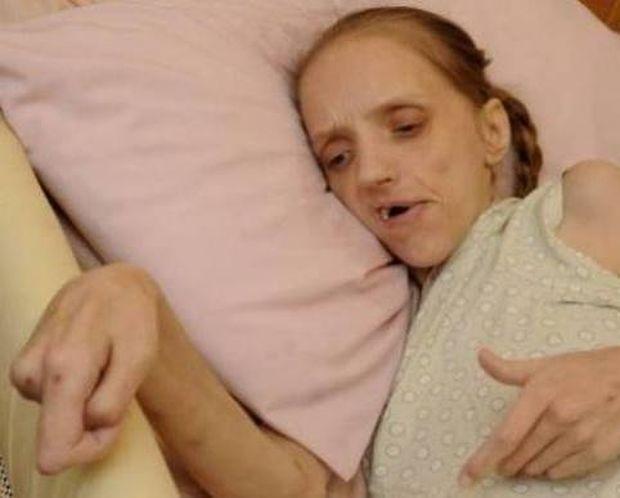 «Λιώνει» στα 35 της, εξαιτίας του αλκοόλ
