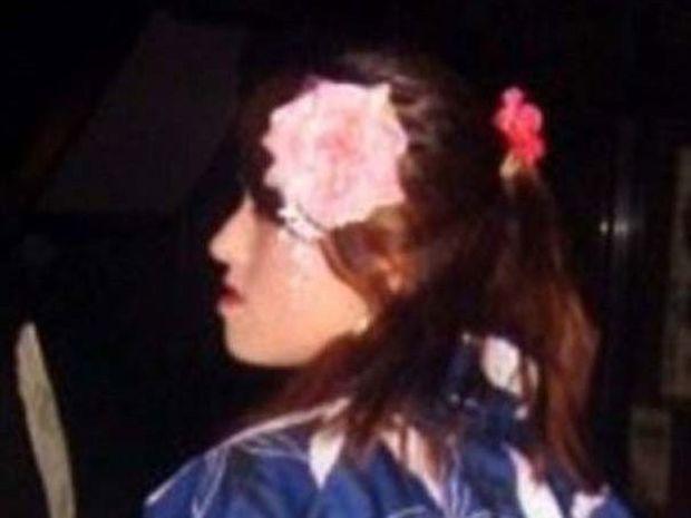 Κοπέλα απέκτησε επιτέλους το πρόσωπο των ονείρων της