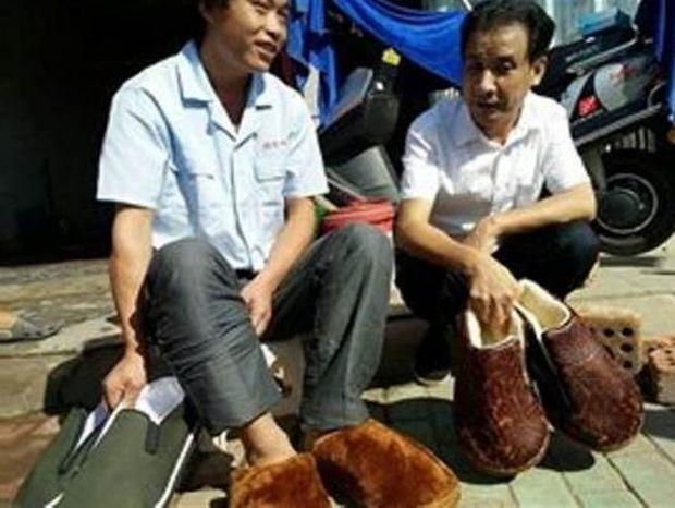 Έβαλε παπούτσια στα 27 του πρώτη φορά λόγω ελεφαντίασης