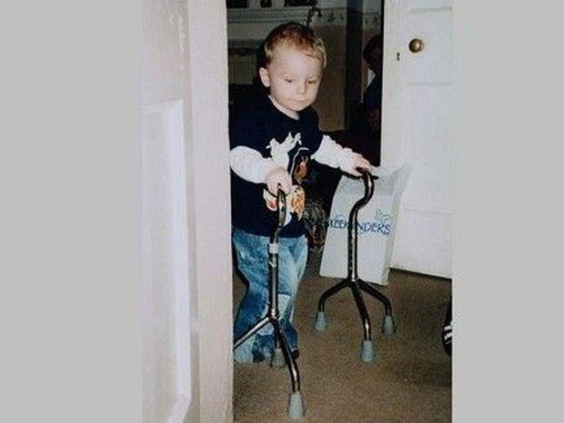 Όταν αυτό το ανάπηρο παιδάκι περπάτησε, ΔΑΚΡΥΣΕ όλο το διαδίκτυο! (video)