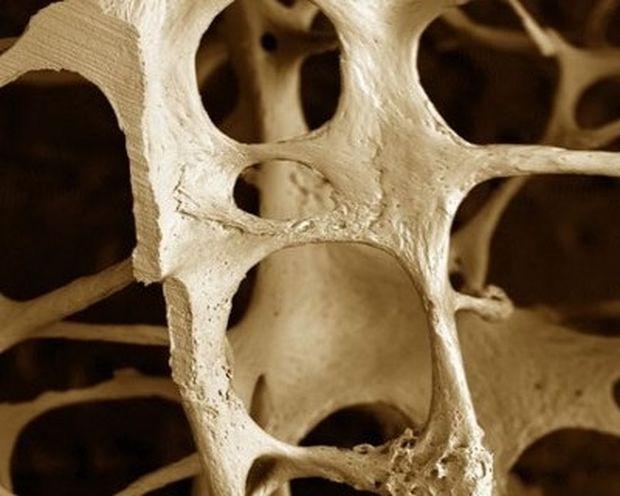 Ποιες τροφές καταπολεμούν την οστεοπόρωση;
