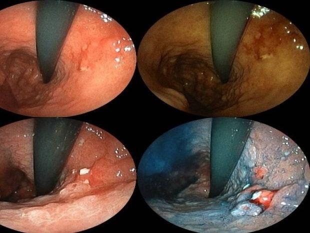 Καρκίνος στομάχου: Συμπτώματα και θεραπεία