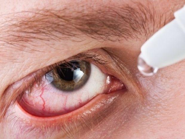Αλλεργίες στα μάτια λόγω άνοιξης - Τρόποι αντιμετώπισης